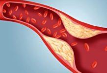 холестерин снижение