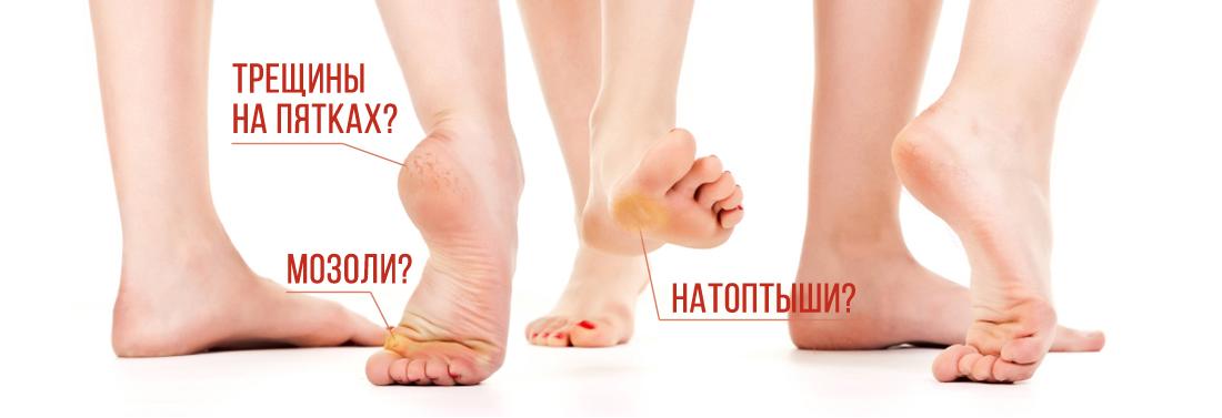 Грибок стопы — симптомы и лечение, фото