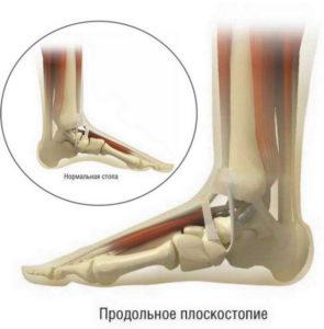 Плоскостопие ног лечение
