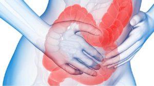 Cиндром раздраженного кишечника лечение