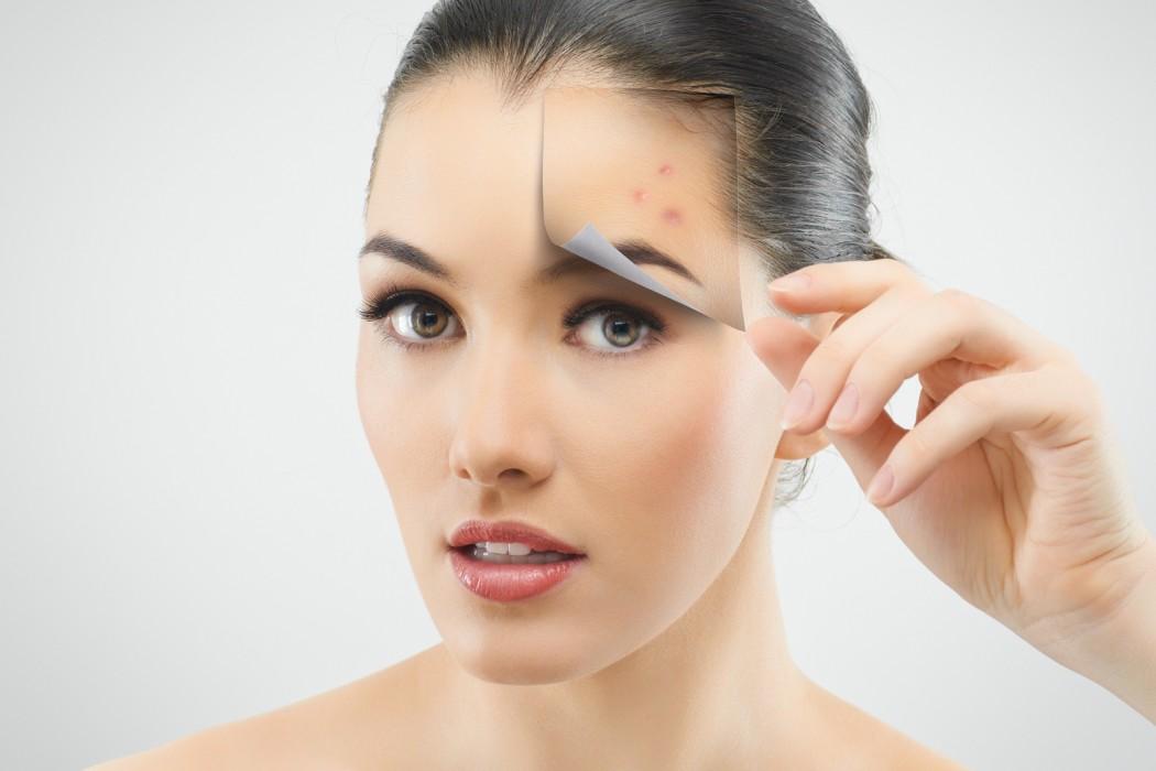 Как избавиться от угрей на лице в домашних условиях. Лечение угрей в домашних условиях