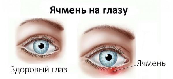 вылечить ячмень на глазу
