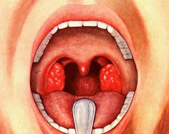 Стратегия лечения ангины