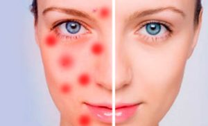 воспаления кожи лечение