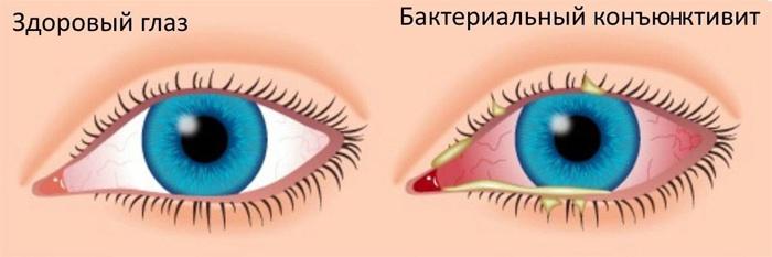 Бактериальная инфекция глаза