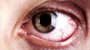 что делать красные глаза