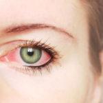 Красные глаза что делать