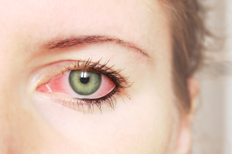 Как сделать белки глаз красные 904