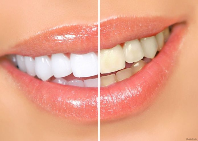 отбелить зубы в домашних условиях быстро