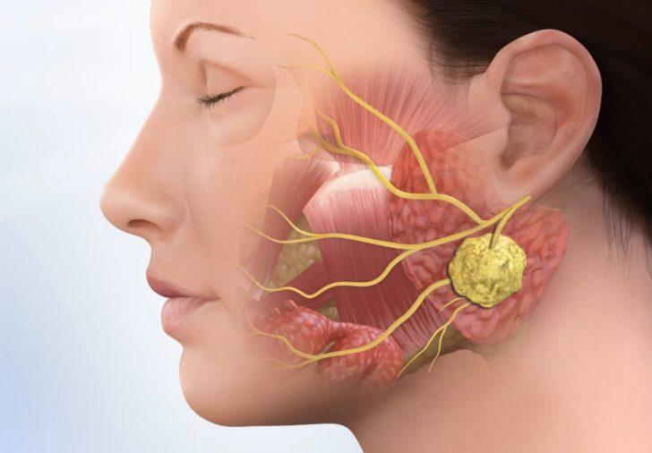 Лечение связок голосовых