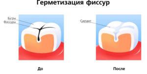 уход за зубами и деснами силанты
