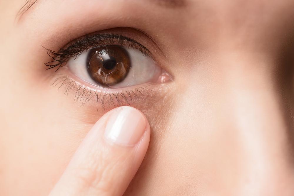 Удаление папилломы на веке глаза в домашних условиях. - FitoInfo 81