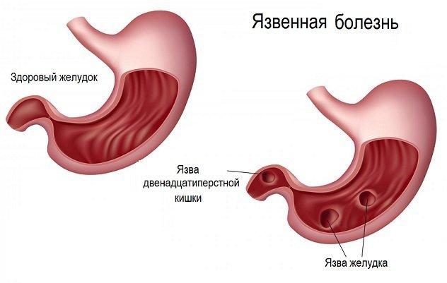 Болит желудок после еды лечение народными средствами thumbnail