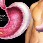 Лечение желудка народными средствами