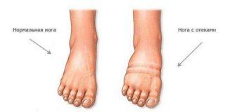 Отеки ног лечение