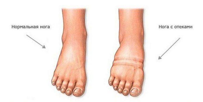 Чем можно снять отеки ног в домашних условиях