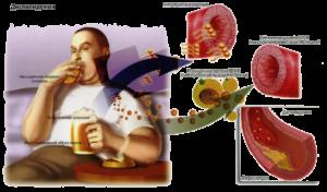 Профилактика холестериновых заболеваний