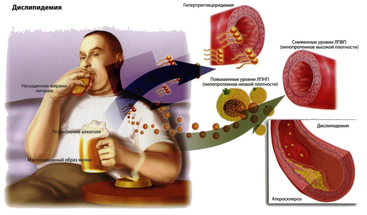 как питанием понизить холестерин
