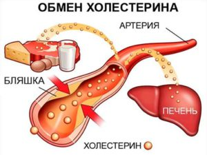Как понизить уровень плохого холестерина самостоятельно