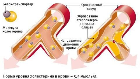 соки от холестерина