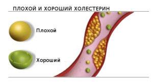 холестерина лечение