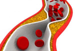 Холестерин приводит к опастным заболеваням