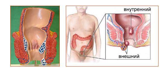 Геморрой - заболевание, основным проявлением которого является расширение вен