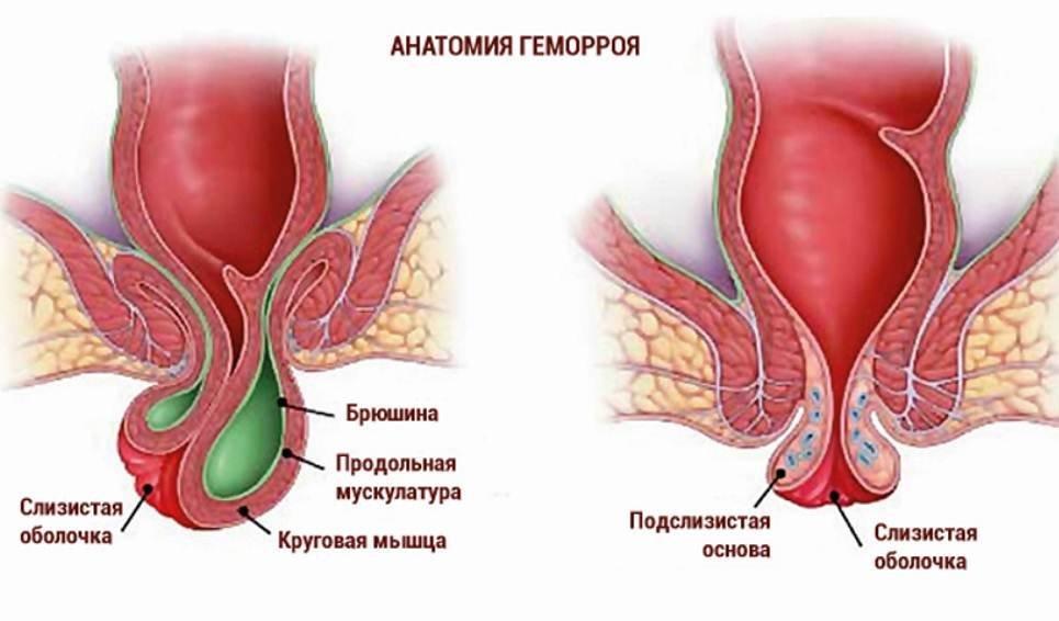 Геморрой часто не лечат, что приводит к осложнениям