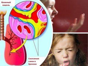кашель сопровождает при болезни