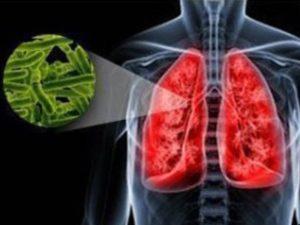 лечение дуришником Туберкулез горла и рак гортани