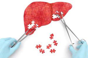 восстановить клетки печени помогает расторопша