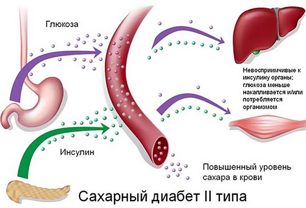 Тип сахарного диабета номер два связан с весом