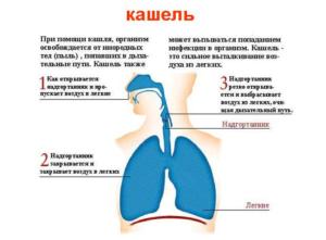 у детей могут быть кашель сухой или мокрый
