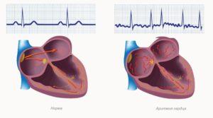 при лечении сердца используют расторопшу