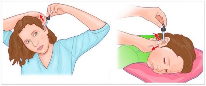 Как нужно закапать капли у ухо