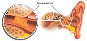 Серная пробка причина боли в ухе