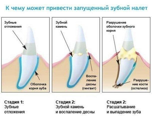 Необходимость удаления зубного налета