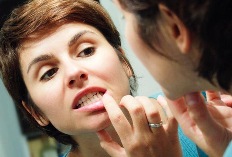 В домашних условиях отбелить зубы можно при помощи недорогих и эффективных средств