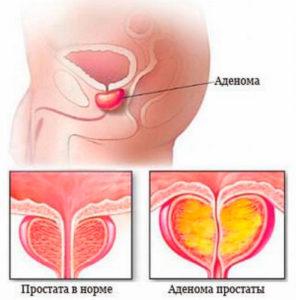 аденома-простаты Симптомы заболевания