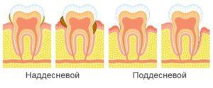 Зубной камень его виды и симптомы