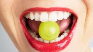 отвердевшее скопление налета на эмали зубной камень