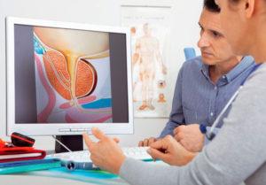 простата лечение народными средствами