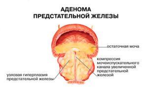 Возможные осложнения Аденома простаты