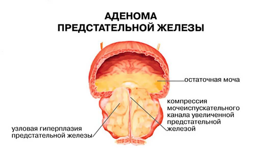 adenoma-predstatelnoy-zhelezi-i-intimnaya-zhizn