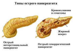 виды нарушений поджелудочной железы