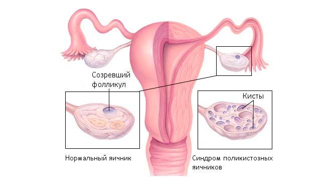 болезнь кисты яичника