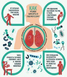 как не заболеть туберкулезом