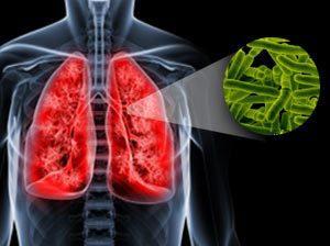 Как лечить туберкулез дома