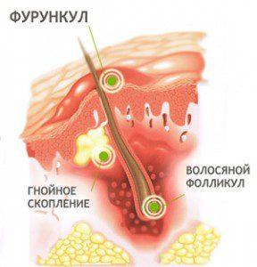 Фурункул на ноге лечение