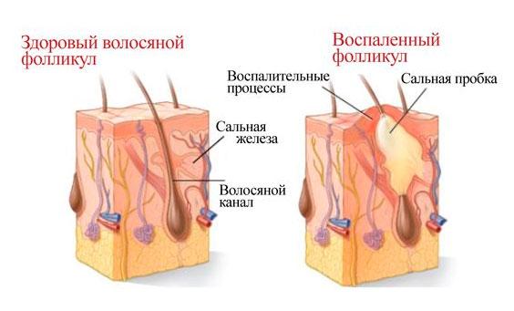 Как образуется фурункул